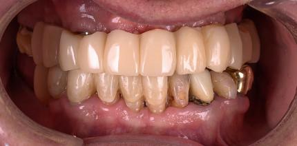 Prothetische Aspekte bei der Rehabilitation zahnloser Kiefer