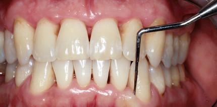 Parodontitisbehandlung bei starkem Raucher