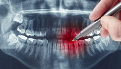 Widersprüchliche Röntgendiagnosen bei traumatisiertem Zahn