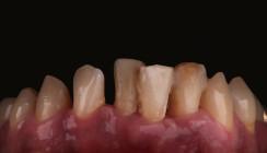 Schienentherapie im parodontal vorgeschädigten Gebiss