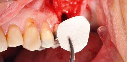 Einzeitige Sinusbodenelevation mit Augmentation