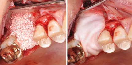 Externer Sinuslift mit verzögerter Implantation