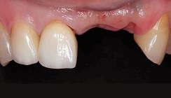 Sofortimplantation mithilfe der Socket-Shield-Technik