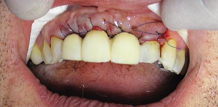 Sofortimplantation in der ästhetischen Zone