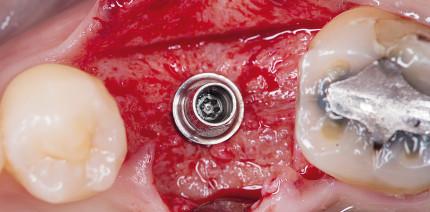Sofortimplantation im Molarenbereich der Mandibula