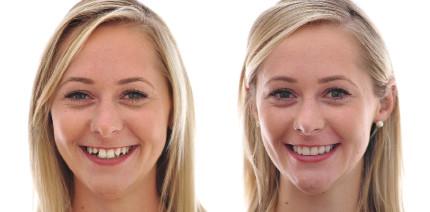 Die Welt der Zähne aus dem Blickwinkel der Moderne
