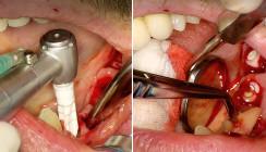 Effiziente Problemlösung durch Sofortimplantation