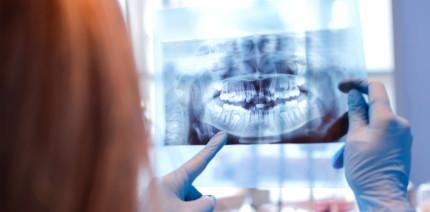 Wurzelkanalaufbereitung: Erhöhte Inzidenz für Microcracks?