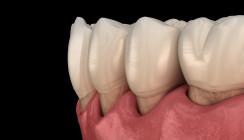 Umfangreicher Zahnerhalt durch Parodontitisbehandlung