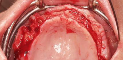 Implantatbrücke im zahnlosen Oberkiefer ohne Augmentation
