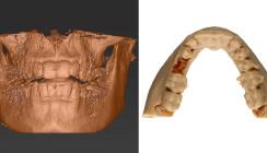 Zahntransplantation und 3-D-Planung