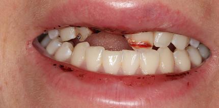 Kosmetische und funktionelle Rehabilitation nach Zahnunfall