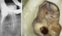Einsatz kalziumsilikatbasierter Materialien in der Endodontie