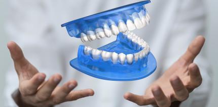 Zahnprothesen aus dem 3-D-Drucker: Gut und günstig?