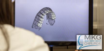 3D-Zahnimplantologie: Feste Zähne für (fast) jeden