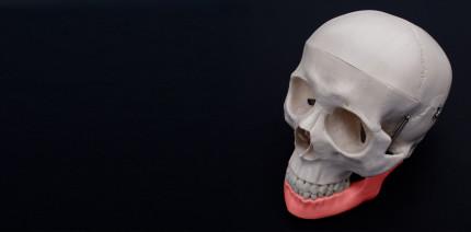 Implantation geglückt: Kind erhält erstmals 3-D-gedruckten Kiefer