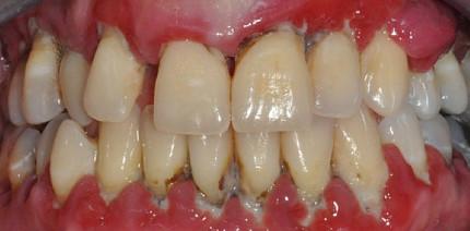 Langzeitergebnisse bei aggressiver Parodontitis