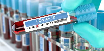 Corona-Testverordnung: Pfleger dürfen testen. Und Zahnmediziner?