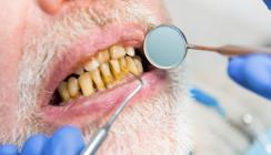 Mehr Corona-Tote durch schlechte Mundhygiene
