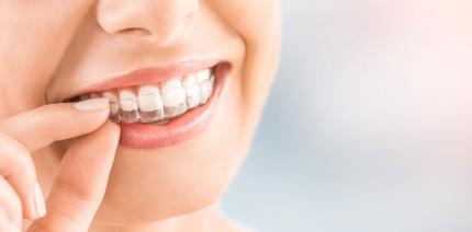 Vom Aligner-Startup zur Zahnarztpraxis-Kette