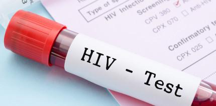Facts statt Fakes: ZFA wissen über HIV in der Zahnarztpraxis Bescheid