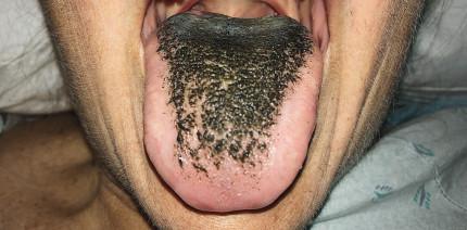 Nach Antibiotikagabe: Frau wachsen Haare auf der Zunge