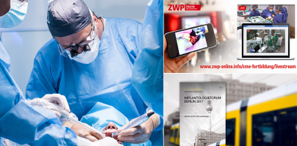 Implantologieforum Berlin: Online CME-Punkt durch Live-OP sammeln