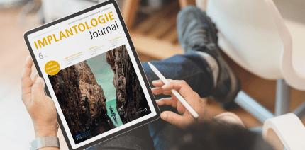 GBR- und GTR-Konzepte im aktuellen Implantologie Journal