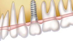 Implantate, Teilprothese oder beides?
