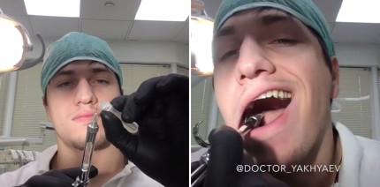 Für den Instagram-Fame: Zahnarzt zieht sich selbst die 8er
