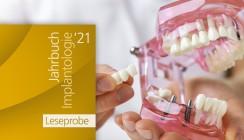 """Jahrbuch Implantologie 2021"": Leseprobe ab sofort online"
