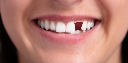 Krankenkassen: Ab 2020 gibt es für Zahnersatz mehr Zuschuss