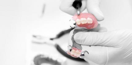 Nachbesserungsrecht des Zahnarztes