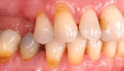 Schwere Parodontalerkrankungen: Klinische Behandlungskonzepte