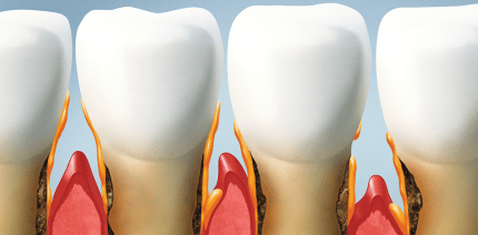 Heute ist Europäischer Tag der Parodontologie