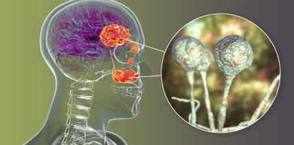 Schwarzer Pilz: Patient verliert nach Coronainfektion alle Zähne