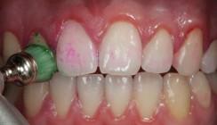 Politur der Zahnoberflächen – Weshalb, wie und womit?