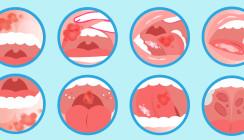 Neues Rekordhoch: Immer mehr Mundkrebsdiagnosen