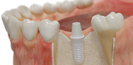 Die Rolle der Implantatoberfläche für die Osseointegration