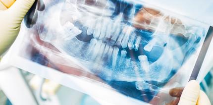 Steigender Punktwert für Zahnersatz und Kronen