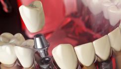 Streit um 34.000 Euro nach Implantatbehandlung