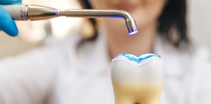 Langzeitstudie: Anpassungsfähige Zahnfüllungen sind besser als starre