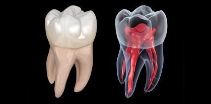 Wurzelbehandlung: Neuartige Analyse von Dentinoberflächen