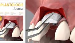 Jetzt online lesen: Oktoberausgabe des Implantologie Journal