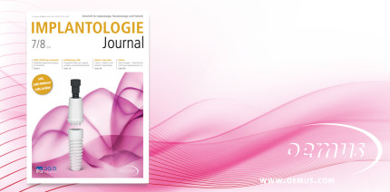 Aktuelles Implantologie Journal fokussiert Keramikimplantate