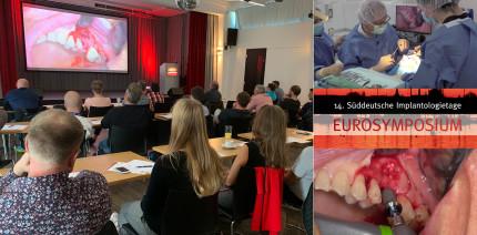 3 CME-Punkte: Live-OPs zum EUROSYMPOSIUM jetzt im Archiv
