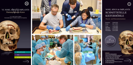 Nose, Sinus & Implants – Humanpräparate-Kurs 2020