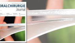 Aktuelles Oralchirurgie Journal jetzt online lesen