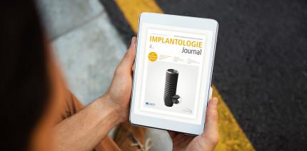Aktuelles Implantologie Journal fokussiert Implantatprothetik