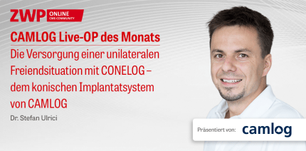 1 CME-Punkt: CAMLOG Live-OP mit Dr. Stefan Ulrici im Archiv abrufbar